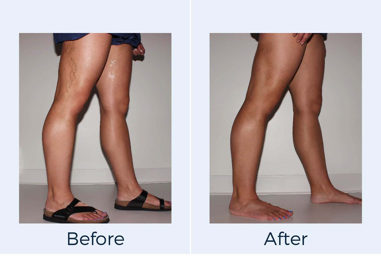 varicose vein treatment and spider vein treatments before and after photos